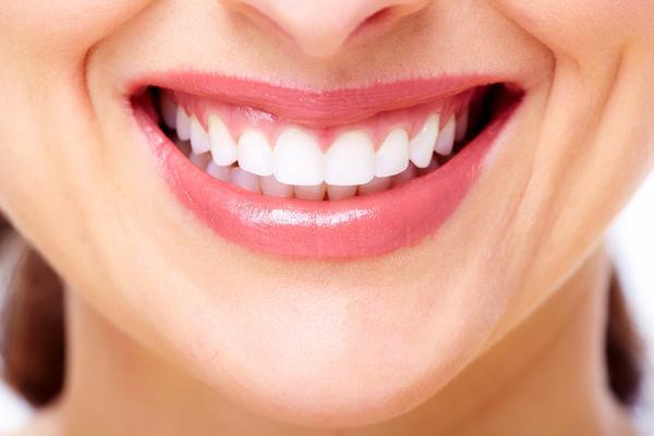 【口コミ評判レビュー】湘南美容歯科のホームホワイトニング2【使用初日】湘南歯科クリニック