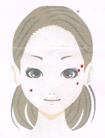 【ほくろ取り】リオラビューティークリニック上野4:手術の効果は?【ほくろ除去口コミ感想評判】