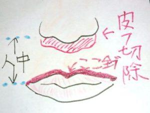 人中短縮術・上唇の上辺