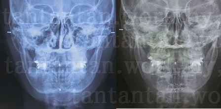 2【韓国整形】2019/11/22術後7日目~ルフォーIVRO両顎手術経過EU口腔外科&渡韓サポーター青い魔女