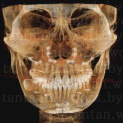 10:EU口腔外科ルフォーIVROミニVライン形成:術後39日目~45日目