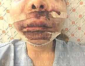 ★★人☆生☆終了★★韓国EU口腔外科 手術入院2泊3日ルフォーIVRO(両顎手術)ミニVライン形成(オトガイ含)