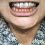 12:韓国EU口腔外科5回目検診ルフォーIVROミニVライン形成術後51日目~56日目