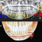 14:韓国EU口腔外科ルフォーIVROミニVライン症例術後70日目~77日目