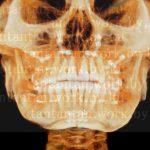 13:57日目~69日目韓国EU口腔外科ルフォーIVROミニVライン症例術後57日目~69日目