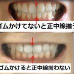 15:韓国EU口腔外科ルフォーIVROミニVライン症例術後78日目~80日目スクリュー釘位置がおかしい