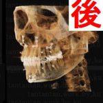 リラクラニオ宇田宏一医師 ミニVライン形成骨切り修正手術の相談カウンセリングレポートブログ