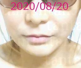 ルフォーIVROミニ輪郭Vライン術後2020/08/20~8ヶ月後