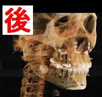 韓国ルフォーIVRO(両顎手術)+ミニ輪郭Vライン術後1年後